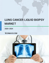 Lung Cancer Liquid Biopsy Market by Product, End-user, and Geography - Forecast and Analysis 2020-2024