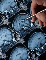 Diagnostic Imaging Market by Product and Geography - Forecast and Analysis 2021-2025