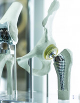 Spinal Implants Market by Product and Geography - Forecast and Analysis 2020-2024
