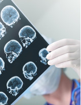 Cranial Implants Market by Product, End-user, and Geography - Forecast and Analysis 2021-2025