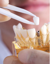 Dental Implants Market by End-user, Price, Material, and Geography - Forecast and Analysis 2021-2025