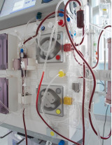 Hemodialysis Catheters Market by Product and Geography - Forecast and Analysis 2021-2025